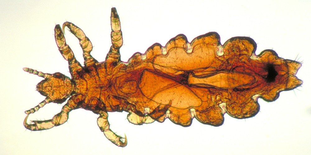 Pest Control - Croach - Kirkland, WA - Female Head Lice
